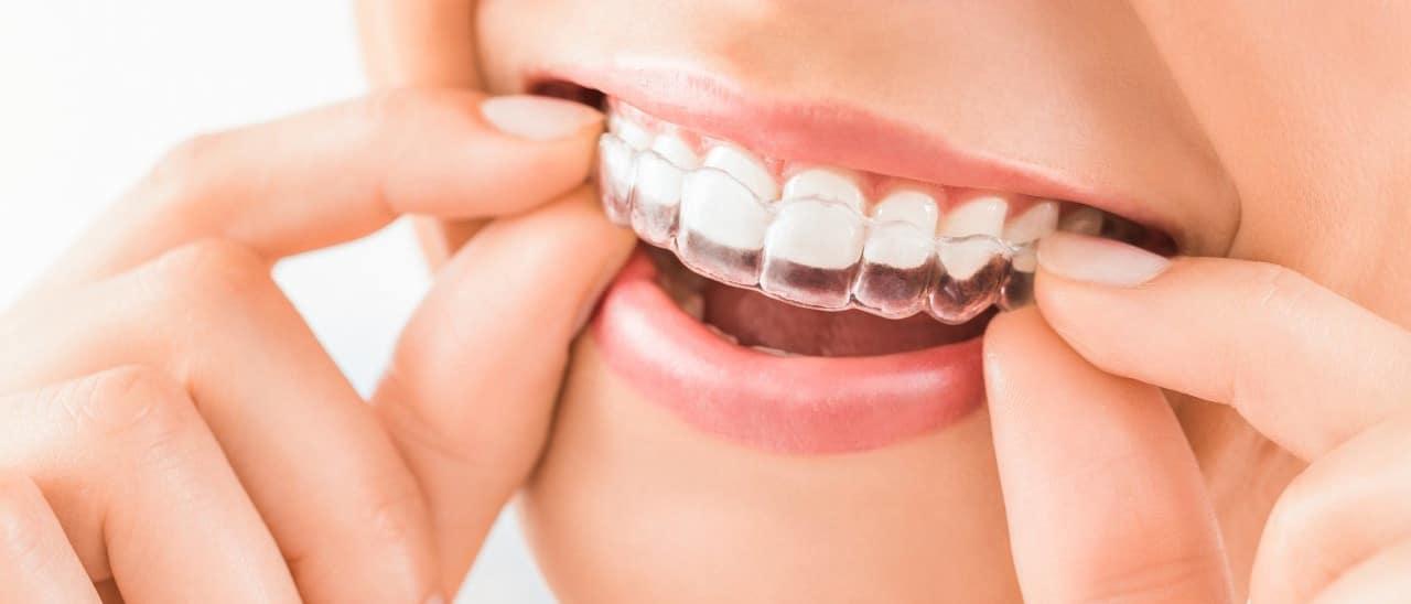 Zahnspange - Durchsichtige Zahnspange wird eingesetzt